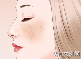 """脸上出现色斑怎么办 要""""对症下药"""""""