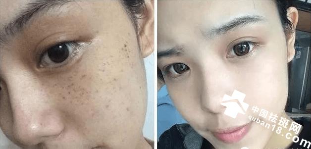 四种祛除面部斑点的特效方法