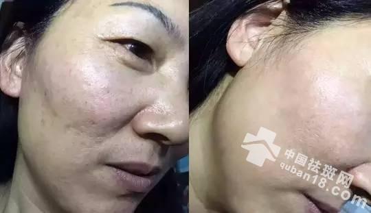 女性做激光祛黄褐斑效果好不好