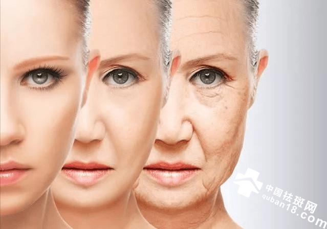 去除老年斑方法,四个小方法去除老年斑。