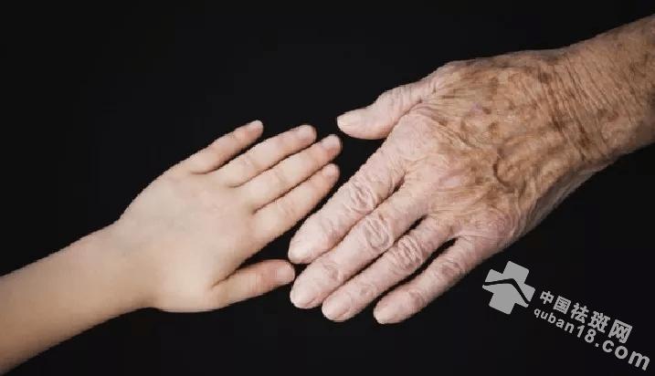老年斑如何预防?