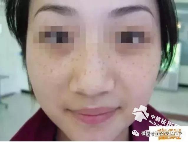 荣格产品祛斑法(遗传斑、雀斑、黄褐斑、妊娠斑、晒斑、老年斑~)